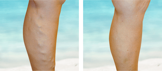 Reduction of varicose vein in leg after treatment.