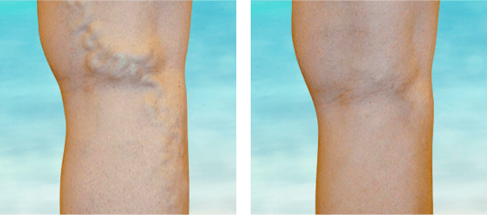 Before and after of bulging leg veins