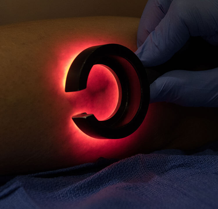 Doctors performing non-invasive veinlite sclerotherapy treatment for spider veins.