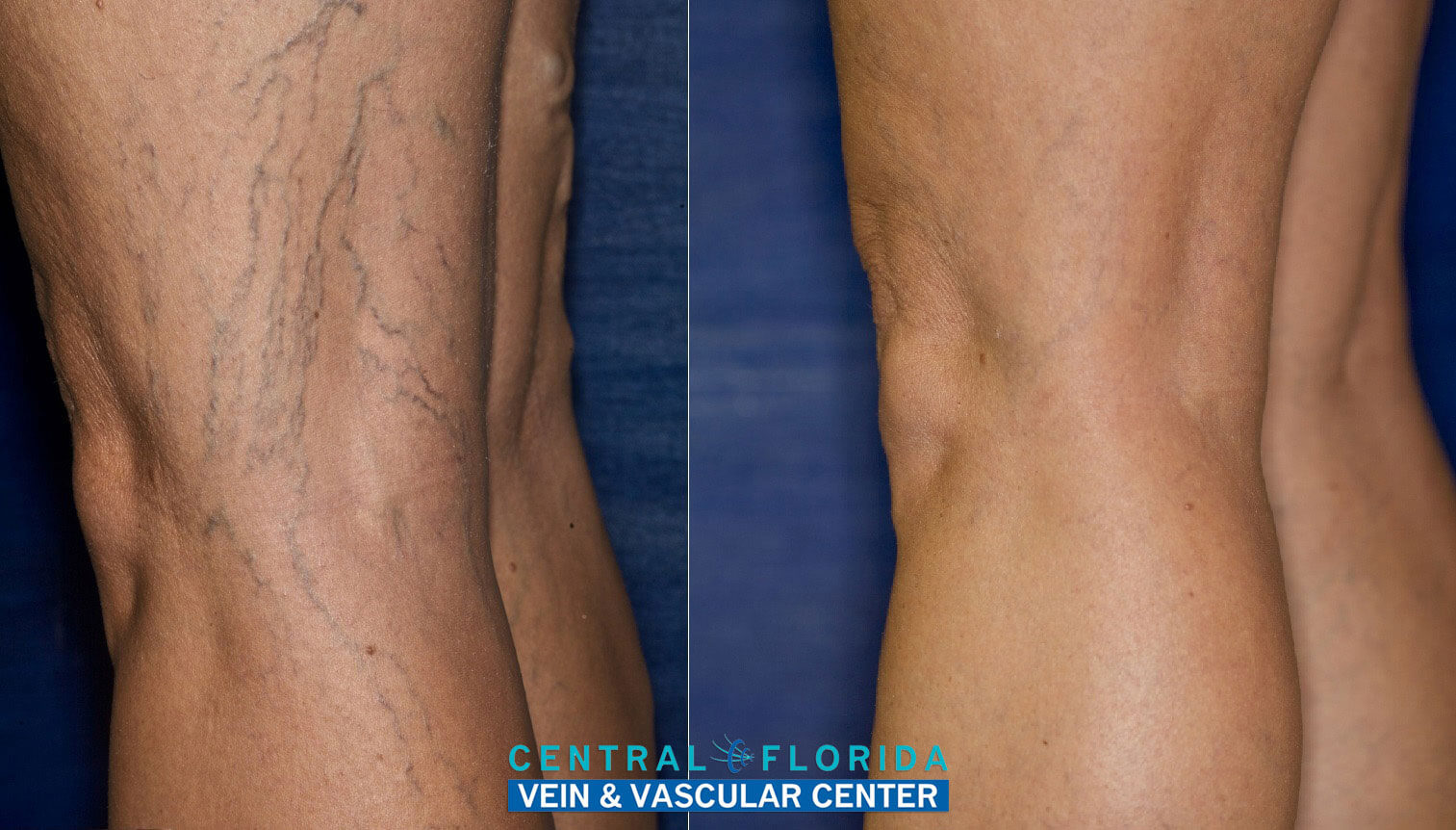Before and After of Varicose Vein Treatment for Left Lateral Knee at Central Florida Vein & Vascular Center