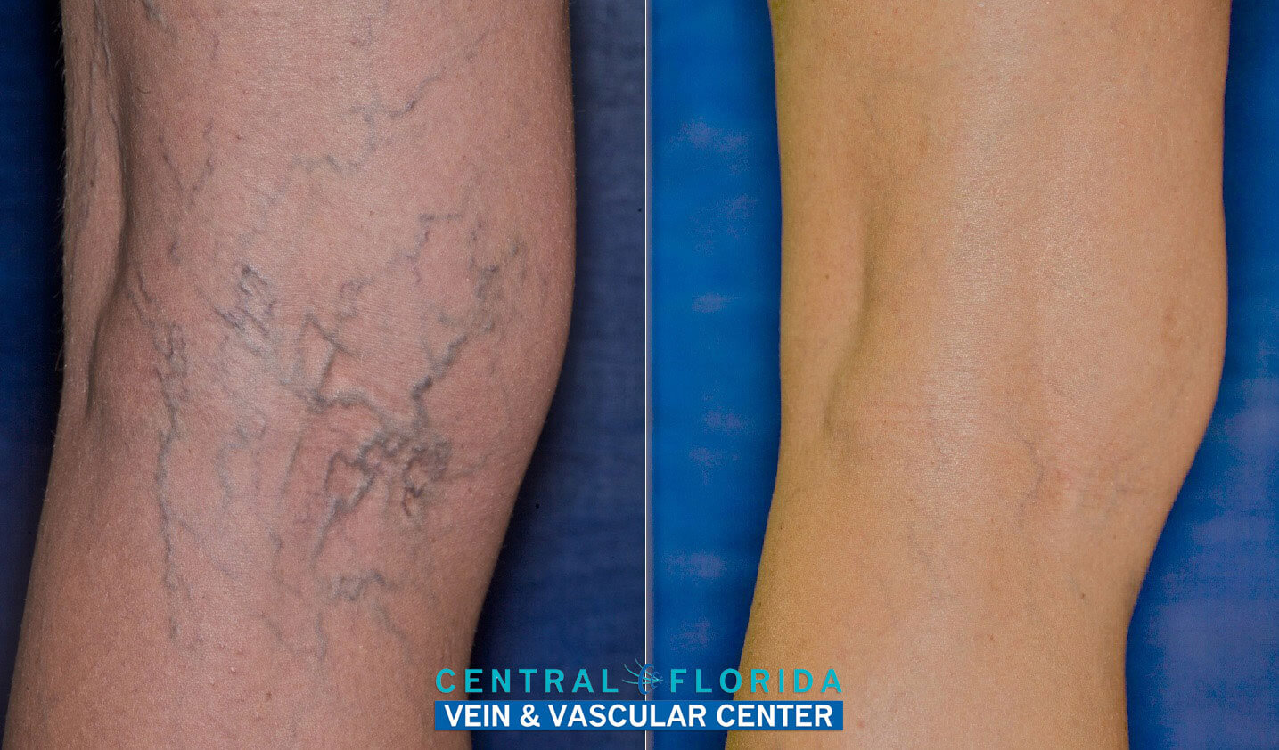 Before and After of Varicose Vein Treatment for Left Posterior Knee at Central Florida Vein & Vascular Center