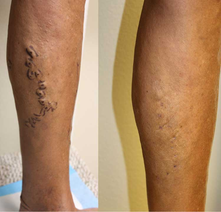 ultrasound guided foam sclerotherapy cost