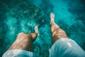 Water Retention and Varicose Veins