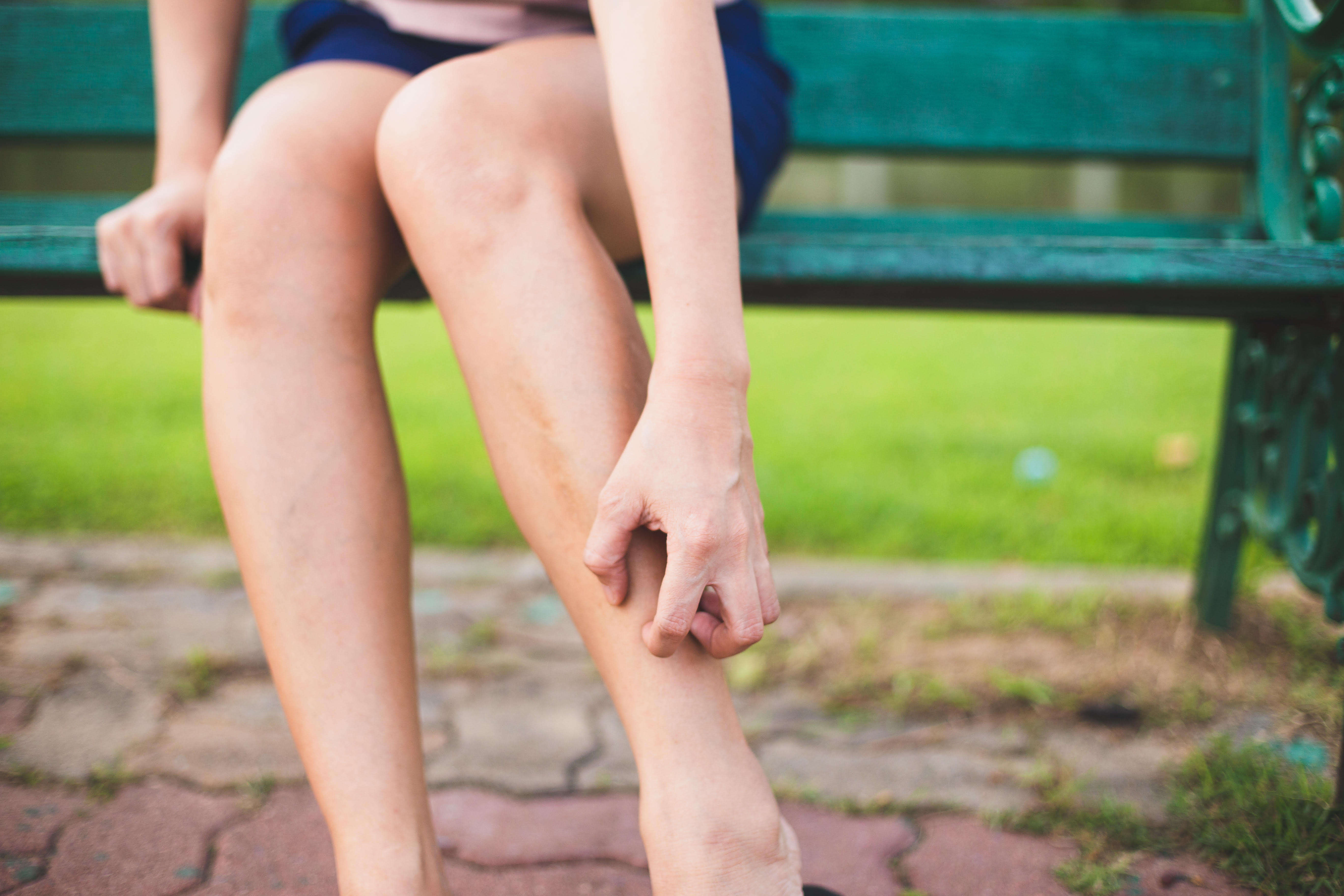 Why Do My Varicose Veins Itch?